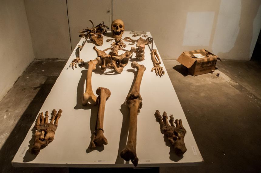 pera-de-goma-clausurada-muestra-esqueleto
